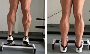 varicose veins weightlifting